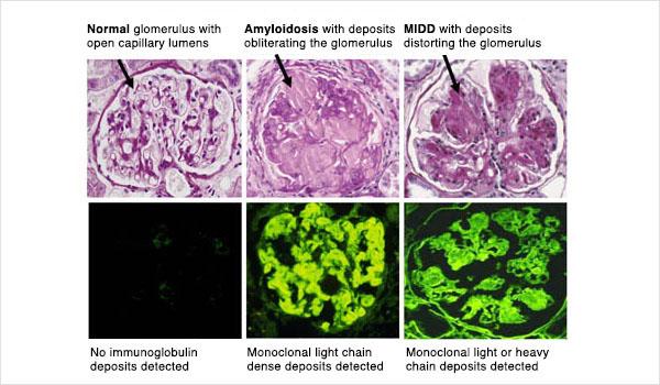 Amyloidosis-LM and IM