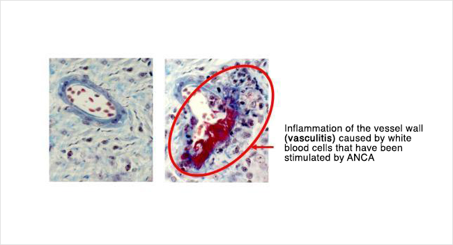 Inflammation of the vessel wall (vasculitis) caused by white blood cells that have been stimulated by ANCA