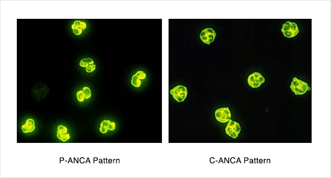 P-ANCA and C-ANCA Patterns