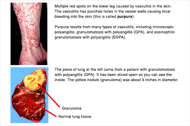 Photo of purpura which results from many types of vasculitis, and a piece of lung from a patient with granulomatosis with polyangiitis (GPA).