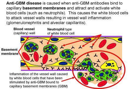 Anti-GBM Basement Membrane