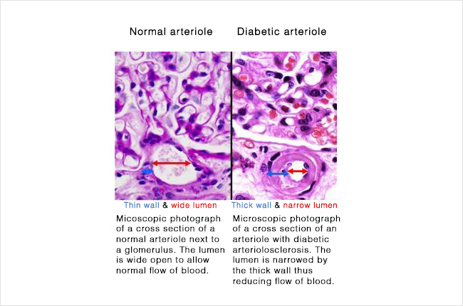 Diabetes - arteriole