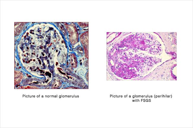 FSGS - glomerulus