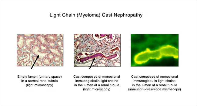 Kappa Light Chain Myeloma Shelly Lighting