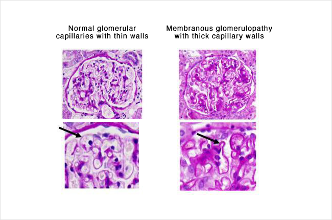Membranous - glomerulus