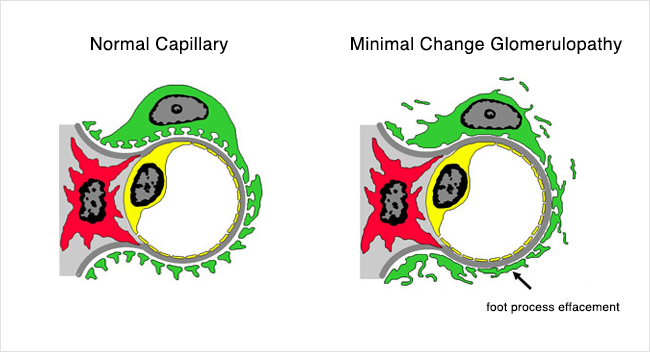 Minimal Change Capillary