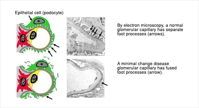 Minimal Change Disease - foot processes