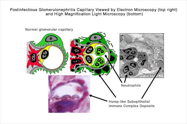 Postinfectious GN - capillary