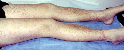 IgA Vasculitis (Formerly Henoch-Schönlein Purpura or HSP